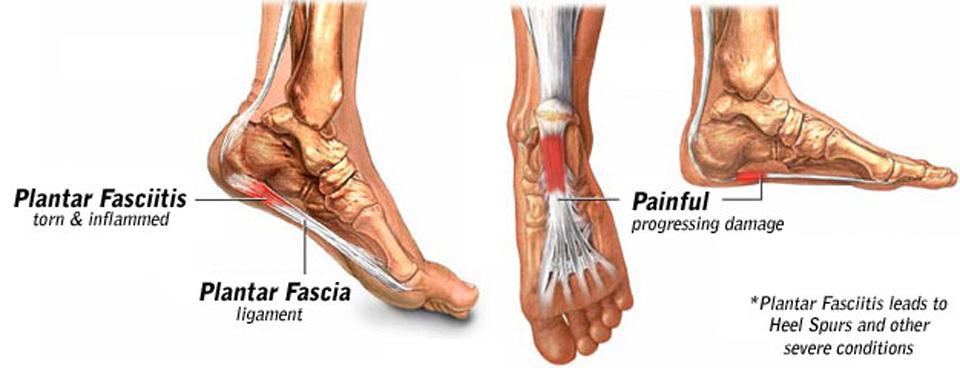 Splints for Plantar Fasciitis